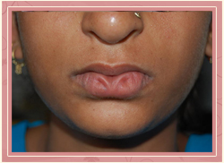 Cleft of the lower lip Pre Operative