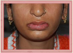 Cleft of the lower lip Post Operative