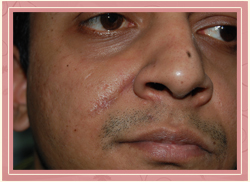 Excision of Moles Post Operative