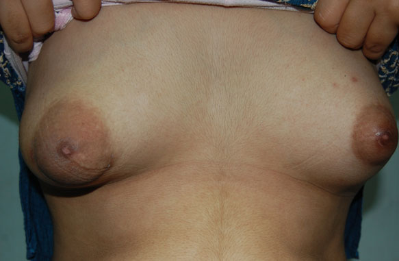 Correction of Tuberous Breast Post Operative