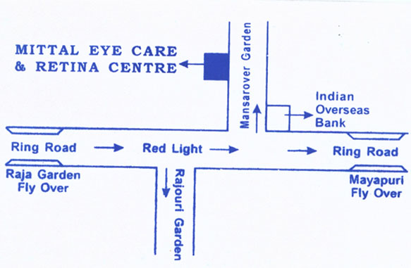 Best Eye Specialist Doctor in West Delhi